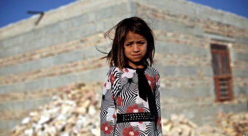 سوء تغذیه ۱۲ هزار کودک در مناطق شهری و روستایی سیستان و بلوچستان